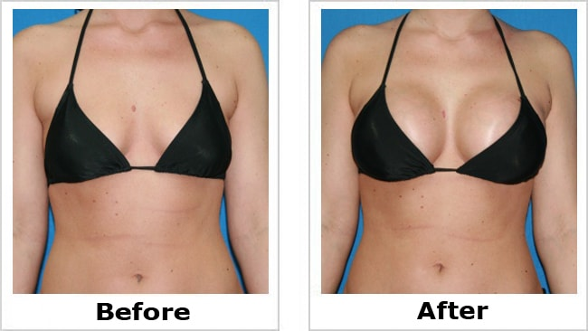Breast Enlargement 70