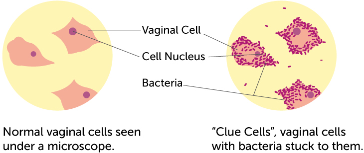 clue-cells
